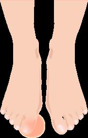 巻き爪のイラスト